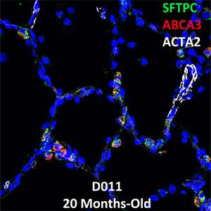20 Month-Old Human Lung Confocal Imaging Donor D011 SFTPC, ABCA3, and ACTA2