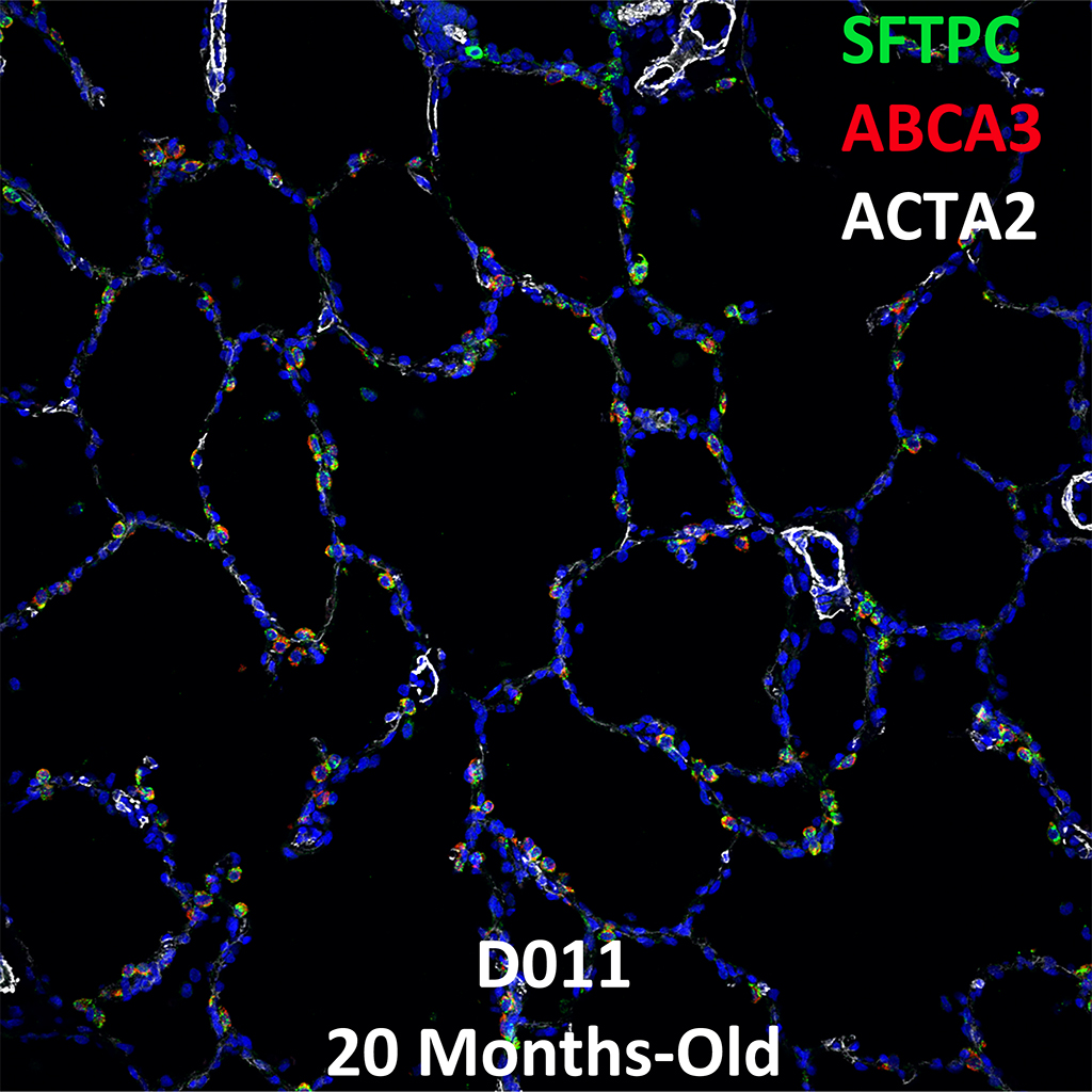 20 Months-Old Human Lung Immunofluorescence and Confocal Imaging Donor D011 Showing Expressions of SFTPC, ABCA3, and ACTA2