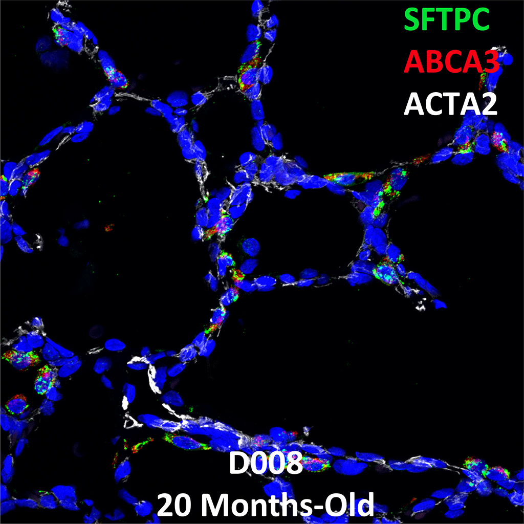 20 Months-Old Human Lung Immunofluorescence and Confocal Imaging Donor D008 Showing Expressions of SFTPC, ABCA3, and ACTA2