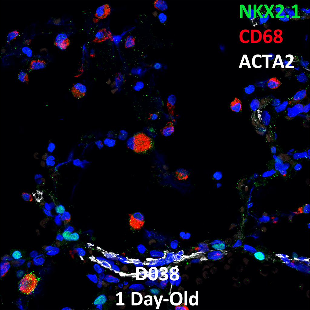 1 Day-Old Human Lung Immunofluorescence and Confocal Imaging Showing Expressions of NKX2.1, CD68, and ACTA2