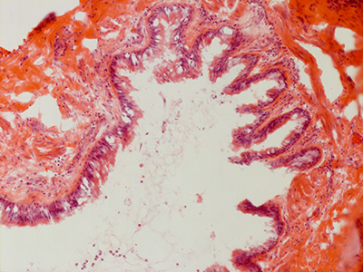 H&E Staining 31 Year Old Human Lung DD034L_MC15-05H_3_21