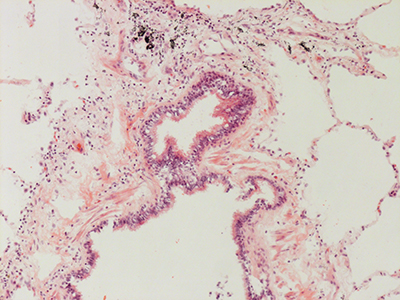 H&E Staining 31 Year Old Human Lung DD034L-MC15-04H_4_11