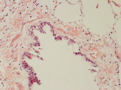 H&E Staining 31 Year Old Human Lung DD034L-MC15-04H_4_20
