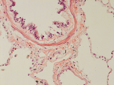 H&E Staining 31 Year Old Human Lung DD034L_MC15-04H_4_21