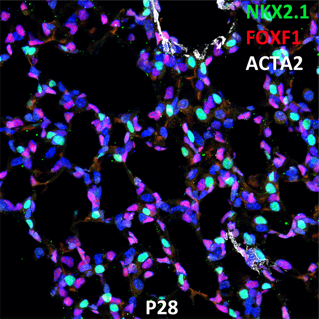 PND28 Immunofluorescence and Confocal Imaging Showing  Expression of NKX2.1, FOXF1, and ACTA2