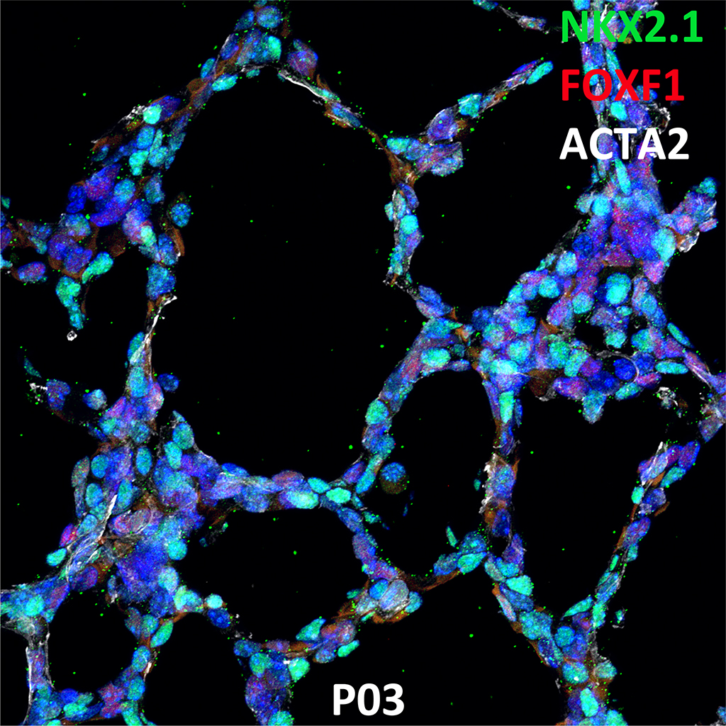 PND03 Immunofluorescence and Confocal Imaging Showing  Expression of NKX2.1, FOXF1, and ACTA2