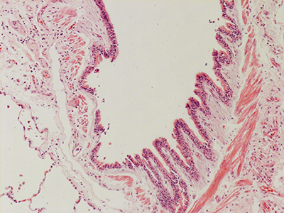 H&E Staining of 31 Year Old Human Lung D0036.04HP_2_14