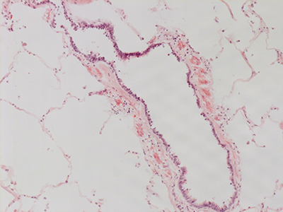 H&E Staining 31 Year Old Human Lung DD036L_MC15_04H_6_11