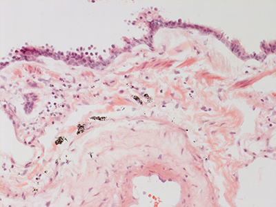 H&E Staining 31 Year Old Human Lung DD036L_MC15_04H_6_21