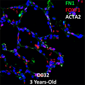 3 Year-Old Human Lung Confocal Imaging Donor D032 FN1, FOXF1, and ACTA2