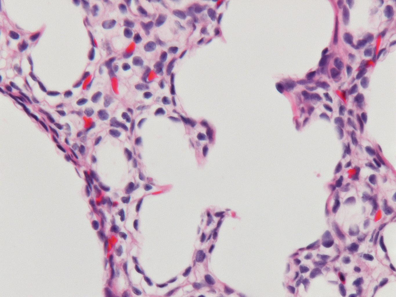 Fetal Monkey Lung H&E LMR14.3.4.3 Gestational day 105