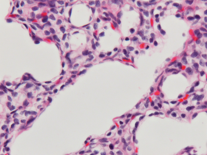 Fetal Monkey Lung H&E LMR14.2.6.5 Gestational day 105