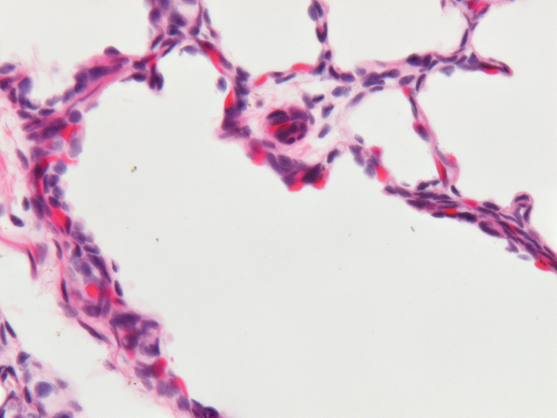 Fetal Monkey Lung H&E LMR14.4.4.3 Gestational day 130