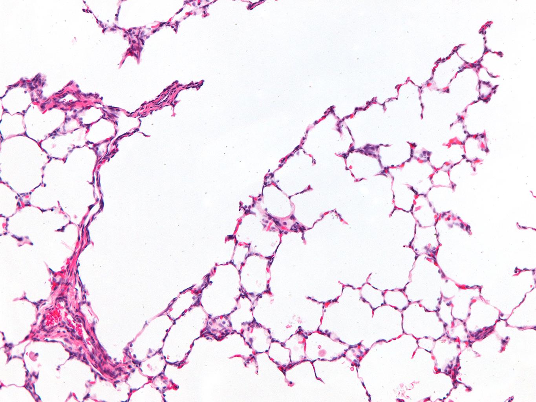 Fetal Monkey Lung H&E LMR14.8.4.3 Gestational day 150