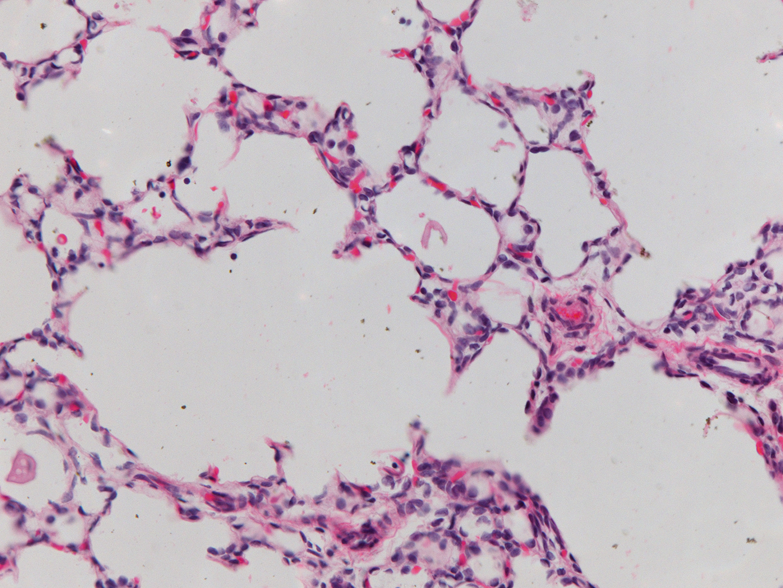 Fetal Monkey Lung H&E LMR14.6.6.3 Gestational day 130