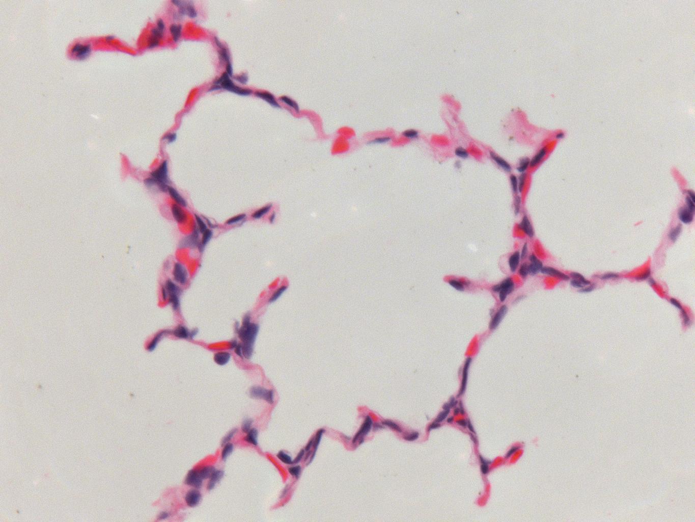 Fetal Monkey Lung H&E LMR14.8.6.3 Gestational day 150