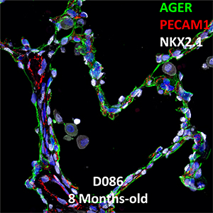 8 Month-Old Human Lung Immunofluorescence and Confocal Imaging BPD Donor D086 Showing Expressions of AGER, PECAM1, and NKX2.1