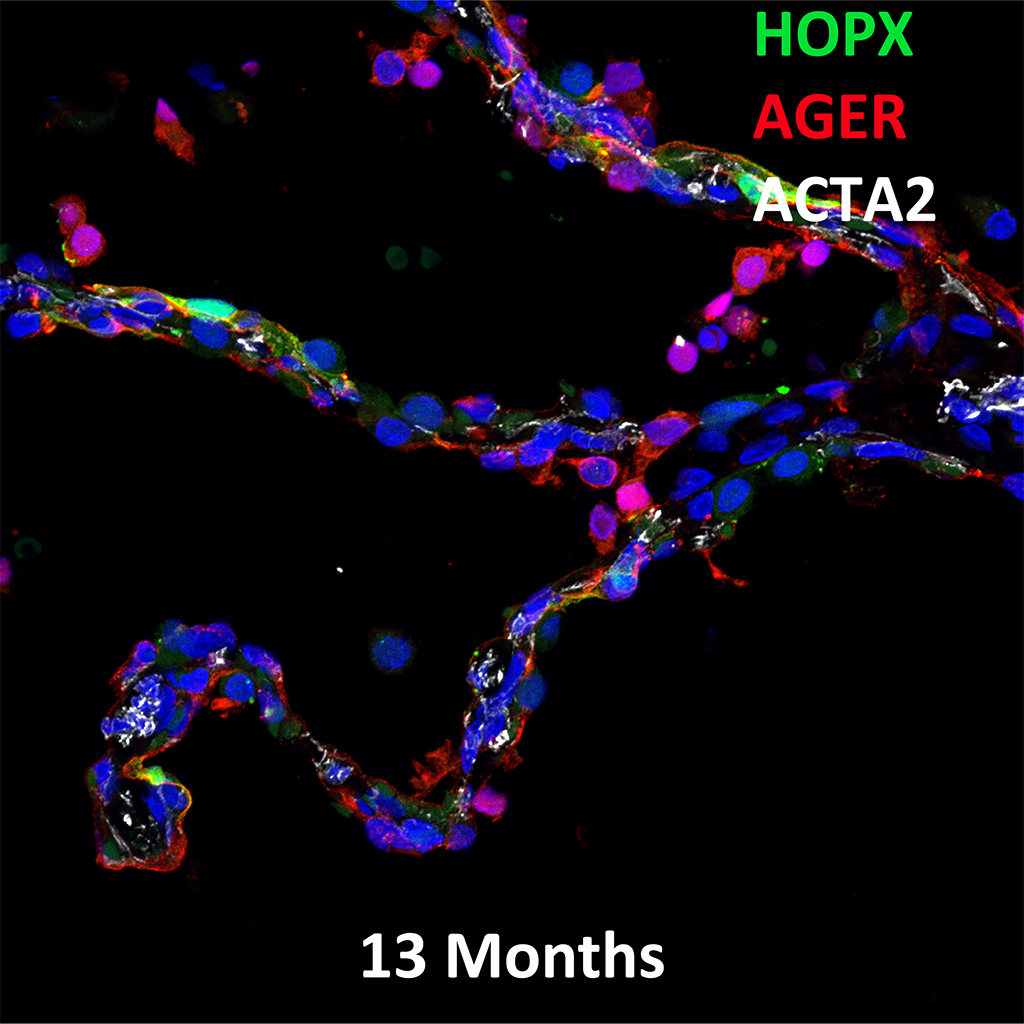 13 Month-Old Human Lung  Confocal Imaging BPD Donor D083 Showing Expressions of HOPX, AGER, and ACTA2