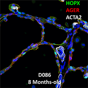 8 Month-Old Human Lung Immunofluorescence and Confocal Imaging BPD Donor D086 Showing Expressions of HOPX, AGER, and ACTA2