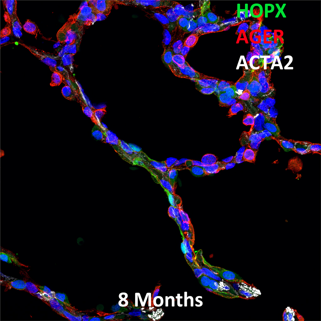 8 Month-Old Human Lung  Confocal Imaging BPD Donor D086 Showing Expressions of HOPX, AGER, and ACTA2
