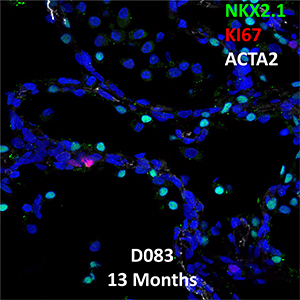 13 Month-old Human Lung Confocal Imaging BPD Donor D083 showing expressions of NKX2.1, KI67, and ACTA2