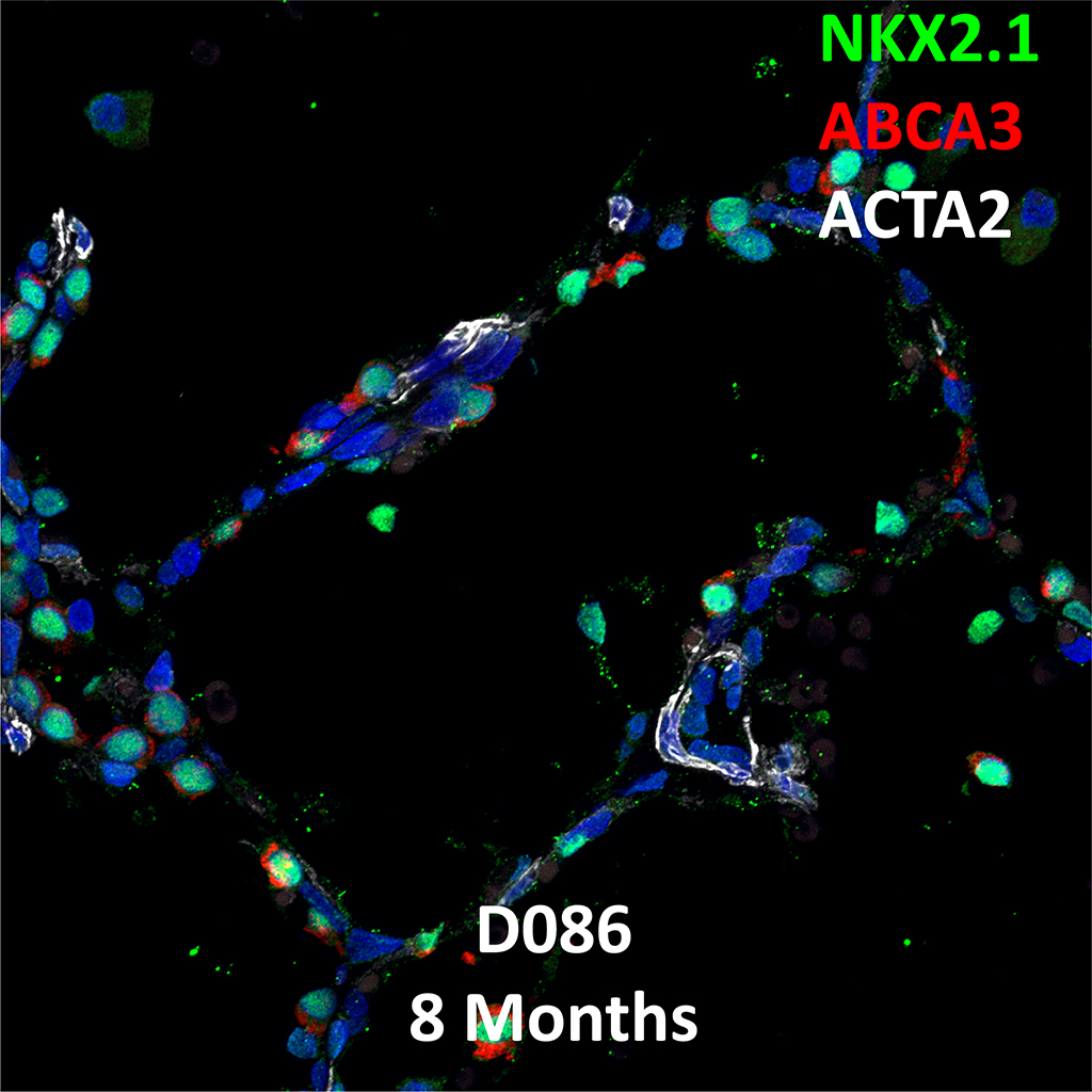 13 Month-Old Human Lung  Confocal Imaging BPD Donor D083 Showing Expressions of NKX2.1, ABCA3, and ACTA2