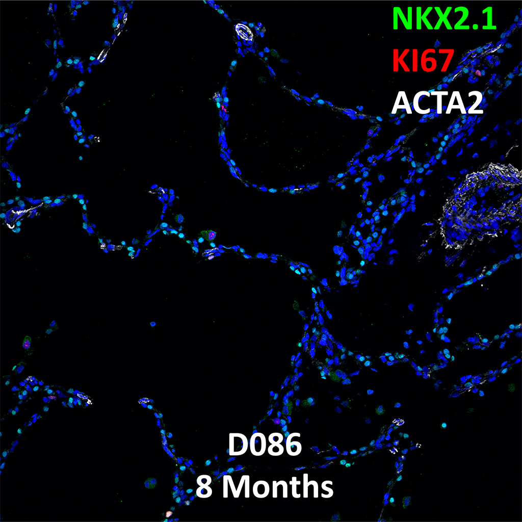 8 Month-Old Human Lung  Confocal Imaging BPD Donor D086 Showing Expressions of NKX2.1, KI67, and ACTA2