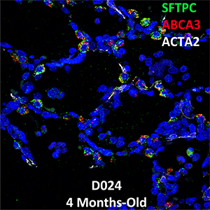 4 Month-Old Human Lung Confocal Imaging Donor D024 SFTPC, ABCA3, and ACTA2