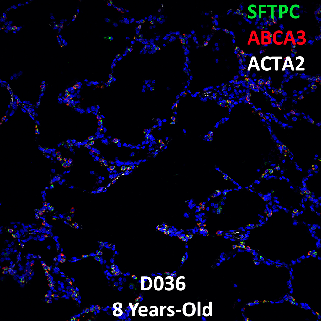8 Year-Old Human Lung Immunofluorescence and Confocal Imaging Donor D036 Showing Expressions of SFTPC, ABCA3, and ACTA2