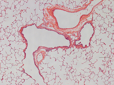 H&E Staining of a 3 Year-Old Human Lung D032-RLL-4A2-FFPE