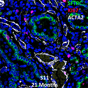 Human Lung Confocal Imaging S11-17235 Primary Alveolar Microlithiasis showing expressions of SFTPC, KI67, and ACTA2