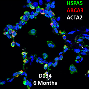 Human Lung Confocal Imaging Donor D034 ABCA3 homozygous mutation showing expressions of HSPA5, ABCA3, and ACTA2