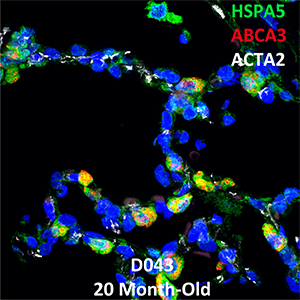 Human Lung Confocal Imaging Donor D043 ABCA3 homozygous mutation showing expressions of HSPA5, ABCA3, and ACTA2