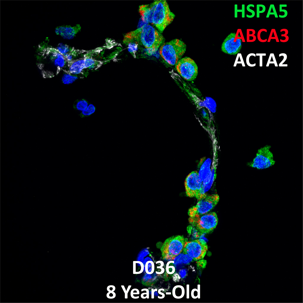 Human Lung Confocal Imaging Donor D036 ABCA3 homozygous mutation showing expressions of HSPA5, ABCA3, and ACTA2