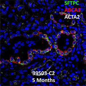 Donor 39503: ABCA3 Homozygous Missence Mutation