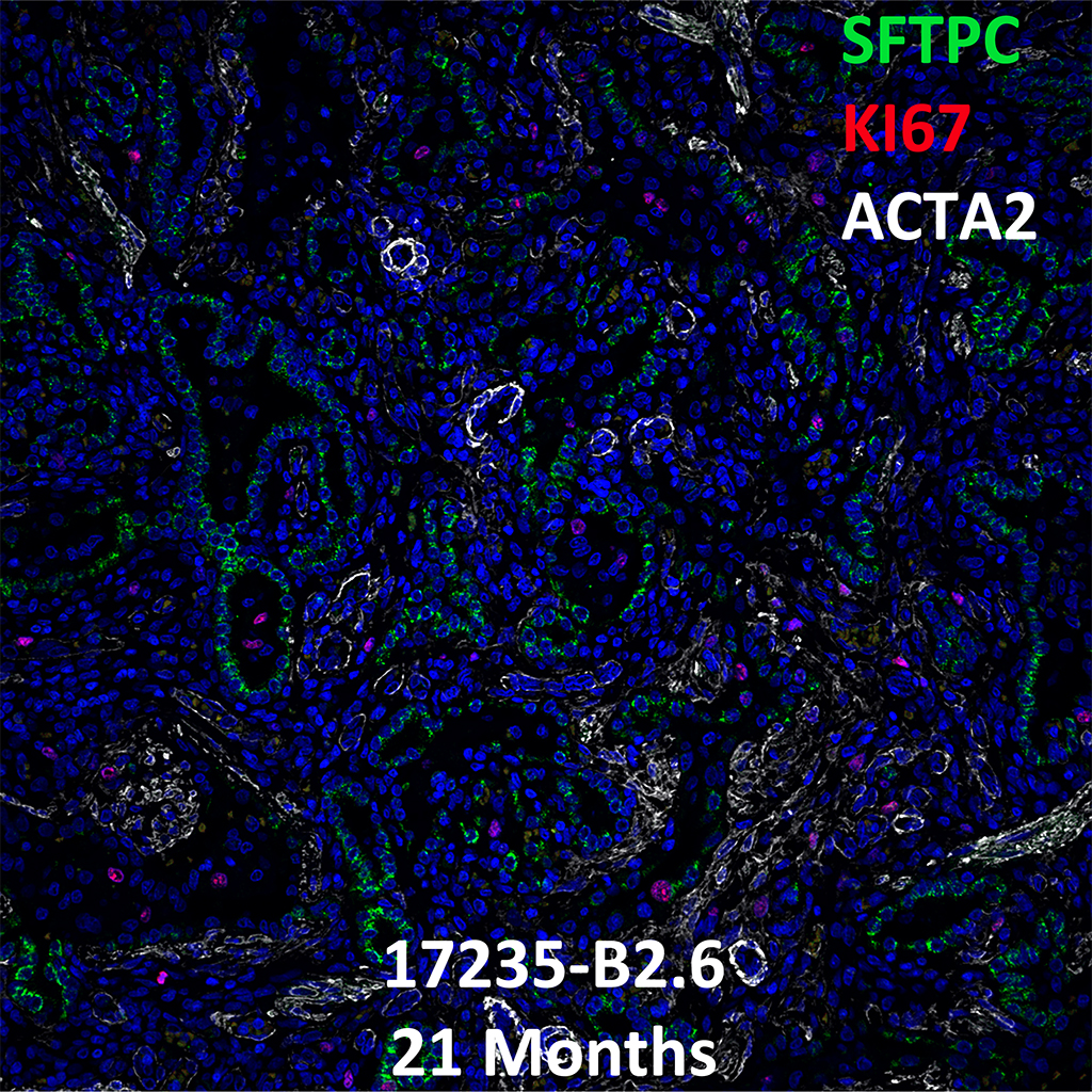 Human Lung Confocal Imaging of Donor 16171.C2.6 Containing an ABCA3 Homozygous Missense Mutation Showing Expression of SFTPC_KI67_ACTA2