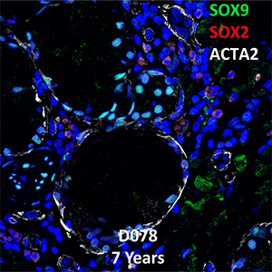 7 Year-Old Human Lung with Asthma Confocal Imaging From Donor D078 Showing Expressions of SOX9, SOX2, and ACTA2