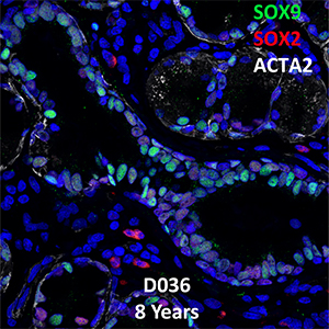 8 Years-Old Human Lung Immunofluorescence and Confocal Imaging Donor D036 Showing Expressions of SOX9, SOX2, and ACTA2
