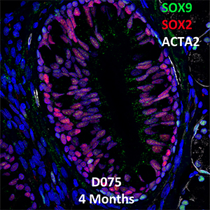 4 Month-Old Human Lung Immunofluorescence and Confocal Imaging Donor D075 Showing Expressions of SOX9, SOX2, and ACTA2
