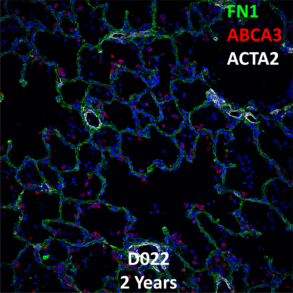 2 Year-Old Human Lung Immunofluorescence and Confocal Imaging Donor D022 Showing Expressions of FN1, ABCA3, and ACTA2
