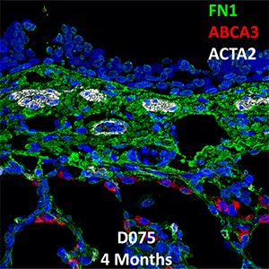 4 Month-Old Human Lung Immunofluorescence and Confocal Imaging Donor D075 Showing Expression of FN1, ABCA3, and ACTA2