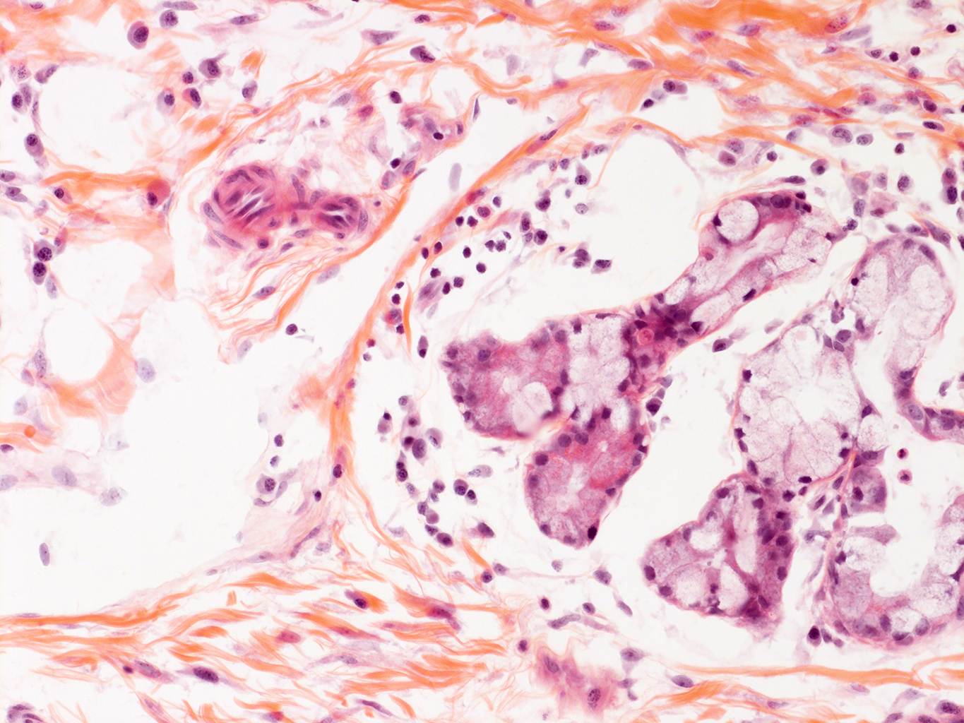 H&E Staining of 11 Month-Old Human Lung from Donor D094-LLL-5B2