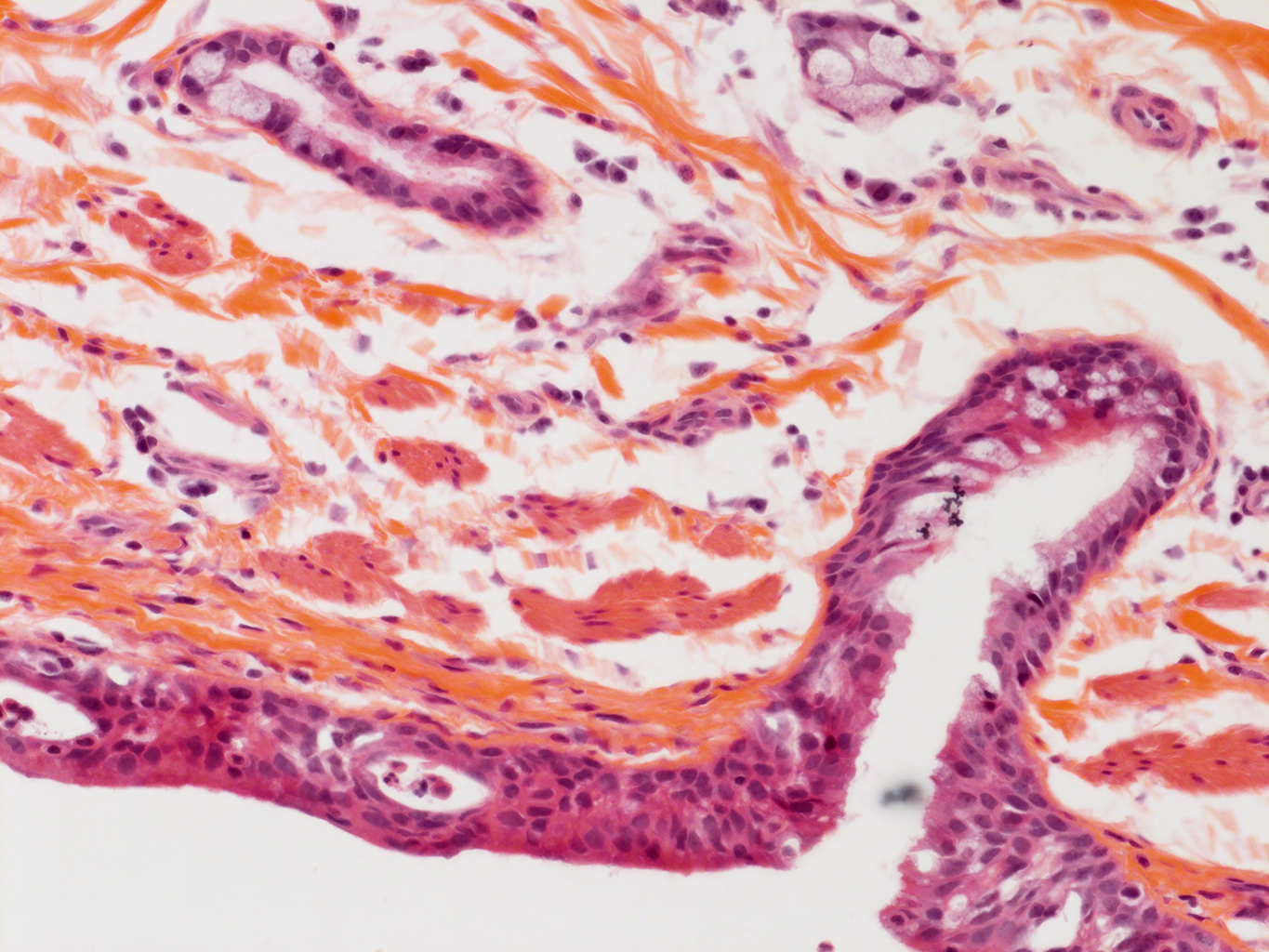 H&E Staining of 11 Month-Old Human Lung from Donor D094-LLL-4B3
