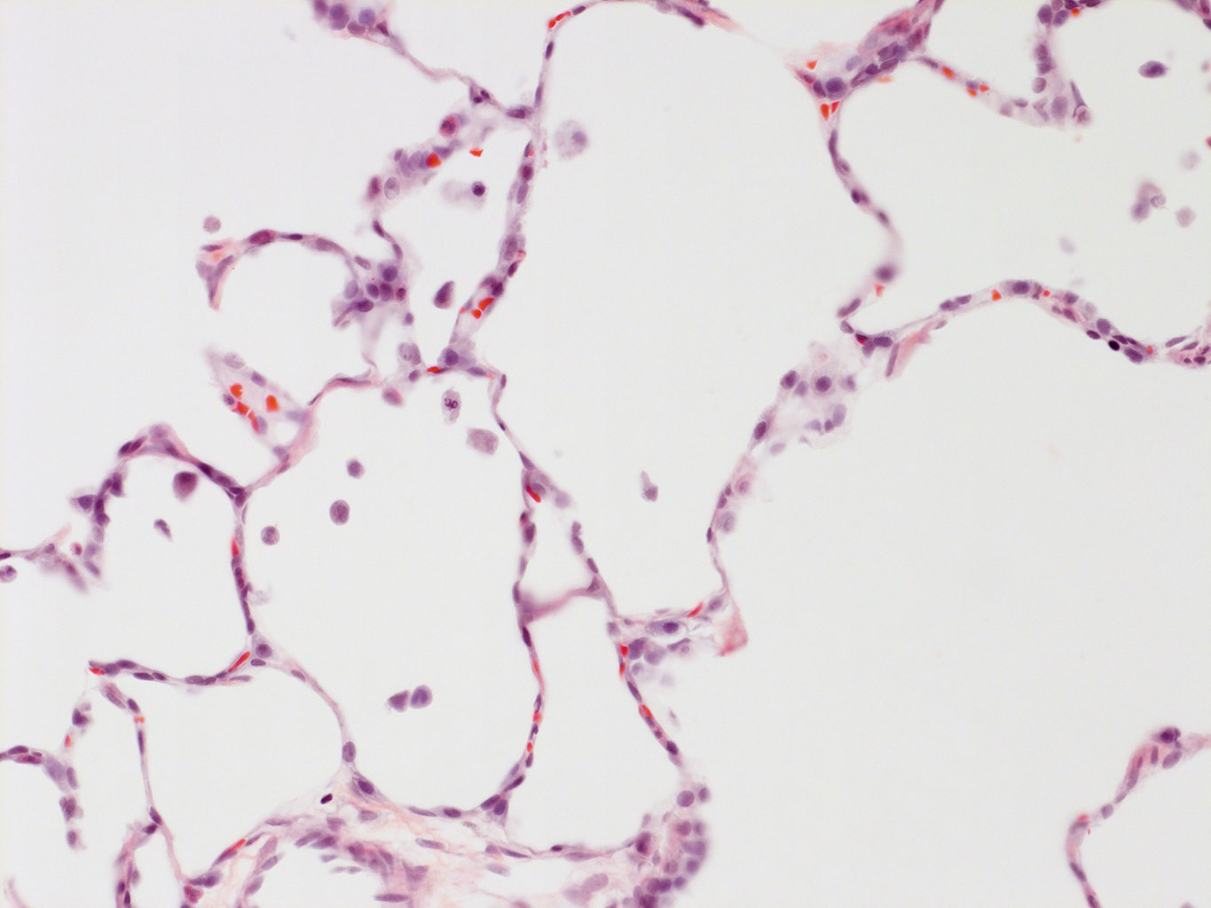 H&E Staining of 14 Month-Old Human Lung from Donor D072-RLL-14B2