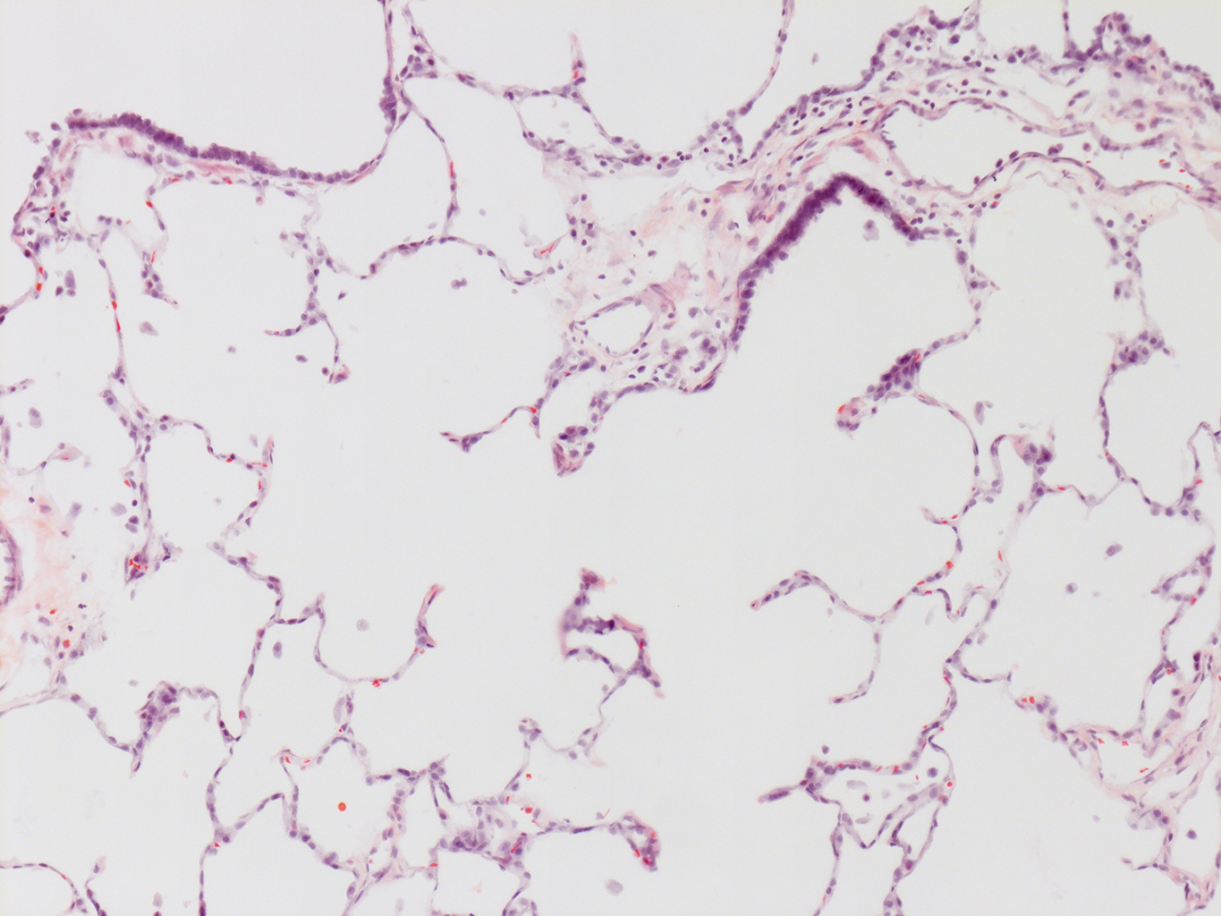 H&E Staining of 14 Month-Old Human Lung from Donor D072-RLL-13B2