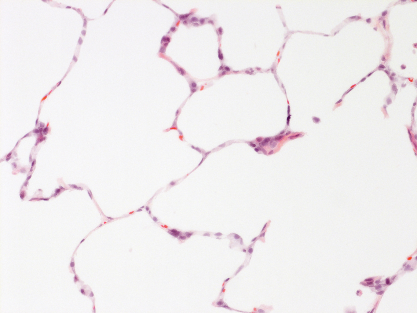 H&E Staining of 14 Month-Old Human Lung from Donor D072-RLL-15B3