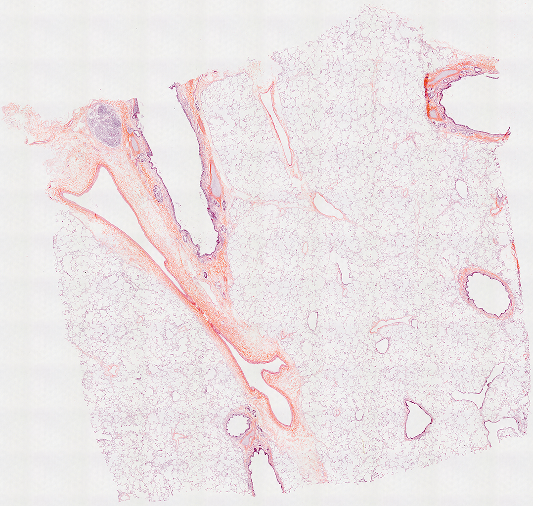 H&E Staining of 14 Month-Old Human Lung from Donor D072-RLL-12B2
