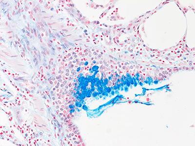 Alcian Blue Staining of 7 Year-Old Human Lung from Donor D078-RLL-16B2