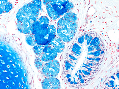 Alcain Blue Staining of 4 Month-Old Human Lung from Donor D075-RLL-10B1