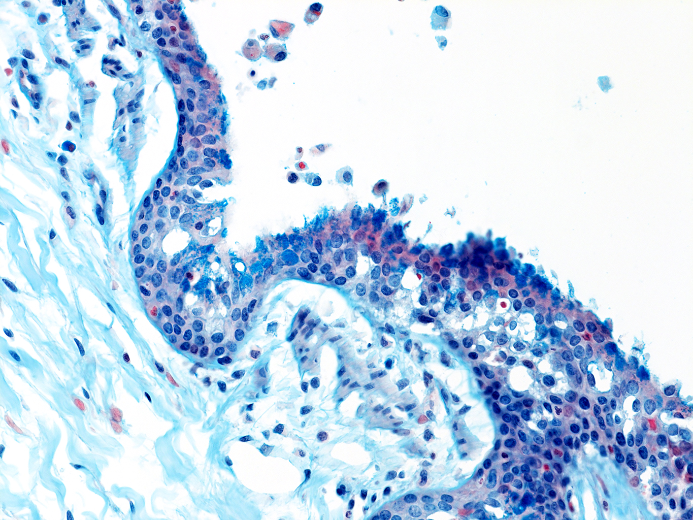 AB Staining of 14 Month-Old Human Lung from Donor D072-RLL-12B2